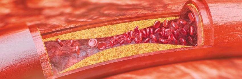 Aterosclerosis y daño endotelial