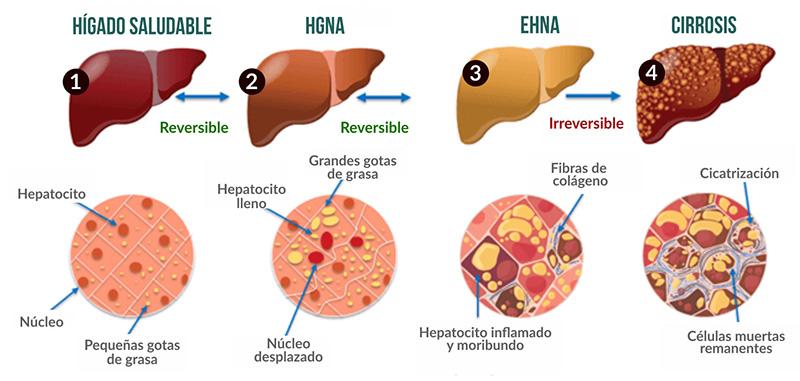 Consecuencias del hígado graso no alcohólico