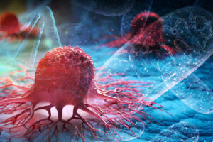 Cáncer: genético o metabólico