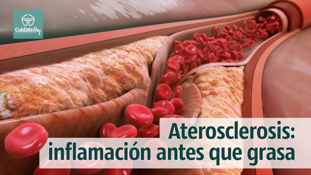 Aterosclerosis: inflamación antes que grasa en la sangre